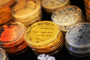 Petri dishes in a lab.